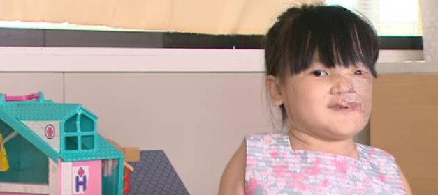 Operan en Madrid a una niña vietnamita con un tumor gigante en la cara