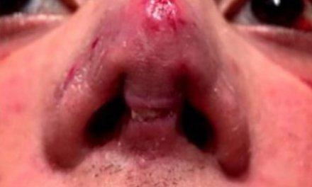 ¿Por las cirugías? Felipe Pettinato internado por una infección en la nariz