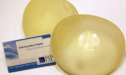 Instrucciones sobre las actuaciones con las prótesis PIP