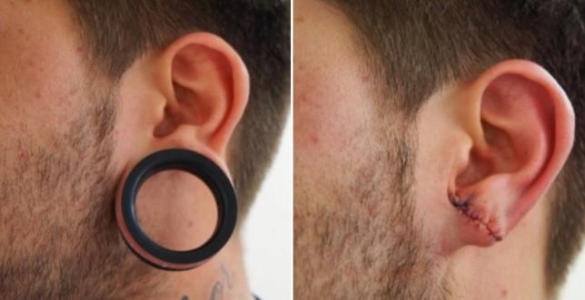 Piercing tribal: moda efímera que se soluciona en un quirófano