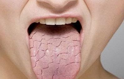 Sequedad de la boca (xerostomía): Causas y tratamiento