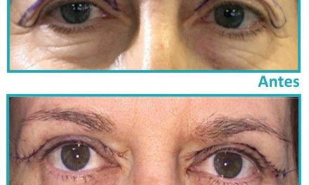 Blefaroplastia, la cirugía estética más demandada a partir de los 55 años
