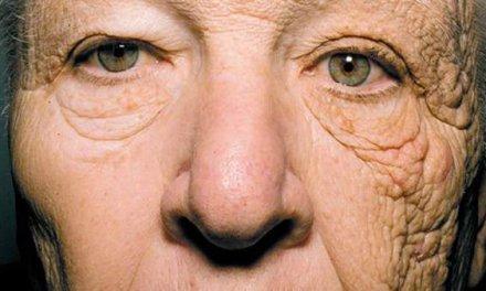 La foto con la que los dermatólogos alertan del peligro del sol