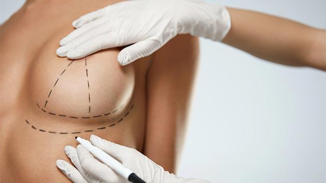 Células madre de grasa corporal para la reconstrucción de pecho