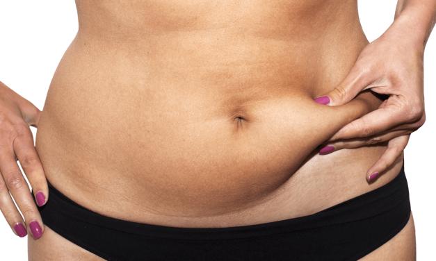 Cinco factores que determinan el precio de la abdominoplastia