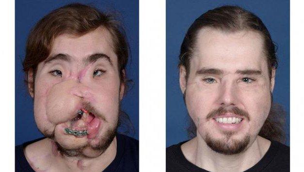 El increíble trasplante de cara que sorprende al mundo