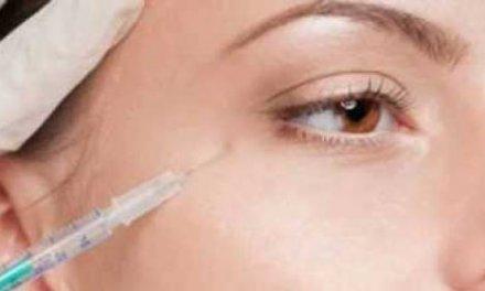 Bótox: controla el envejecimiento y las arrugas