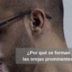 ¿Por qué se forman las orejas prominentes o en forma de soplillo?