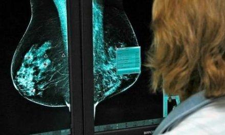 La nanomedicina se muestra eficaz para tratar los tumores de mama más agresivos