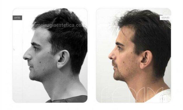 PERFILOPLASTIA: cirugía mixta de rinoplastia y mentoplastia para conseguir un rostro más perfilado
