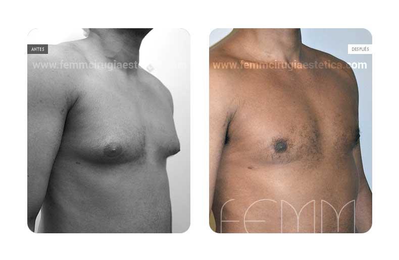 Ginecomastia en hombres, ¿puede variar tras la pérdida de peso?