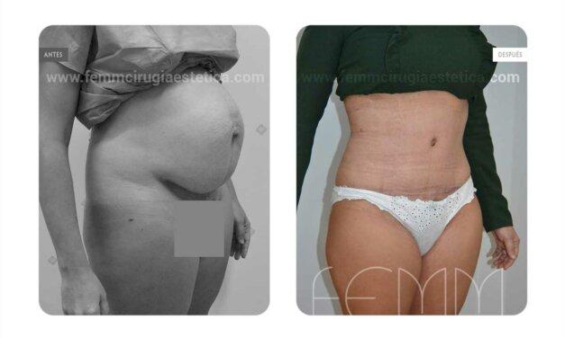 Diferencias entre una mini abdominoplastia y una abdominoplastia