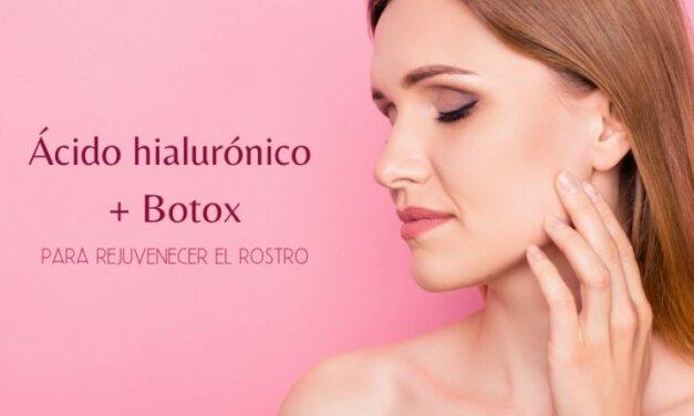 Combinación de ácido hialurónico y botox para rejuvenecer el rostro
