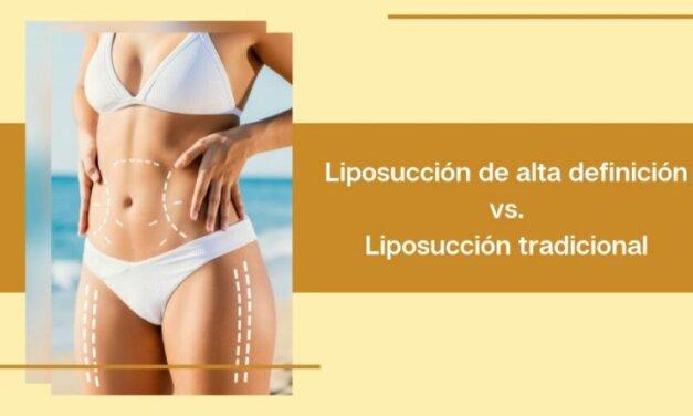 Diferencias entre la liposucción de alta definición y la liposucción tradicional