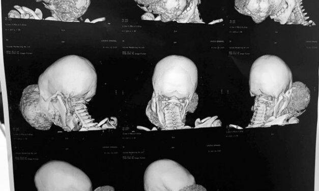 Cavadas extirpa a un niño de diez años un tumor más grande que su cabeza