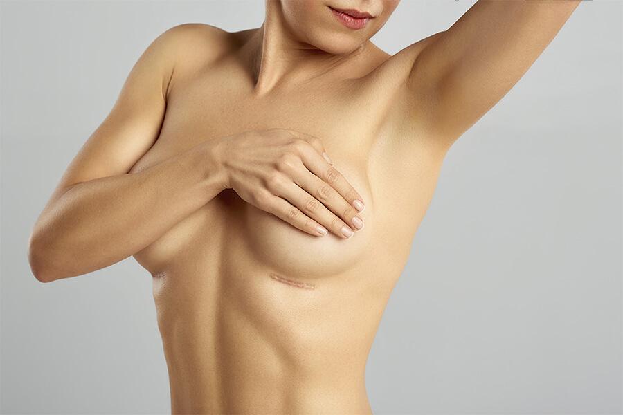 Doctor, tras un aumento de pecho ¿Las cicatrices pueden desaparecer?