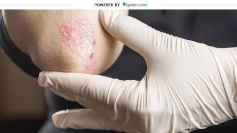 La psoriasis: cómo se produce y por qué es tan difícil de tratar